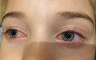 Аллергия на нарощенные ресницы. Как проявляется, фото, симптомы, что делать, чтобы не снимать, последствия, капли