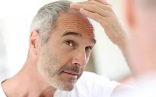 Прически на средние волосы для мужчин с залысинами, высоким лбом, стильные. Фото