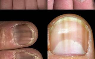 Ониходистрофия ногтей на руках и ногах: что это такое, как проводят диагностику, также причины возникновения, в том числе у детей, симптомы, разновидности и лечение