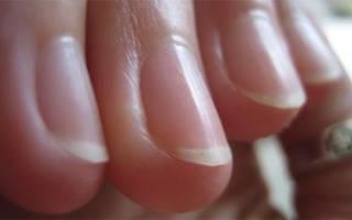 Почему на руках ребристые ногти: причины у женщин и мужчин + лечение заболеваний