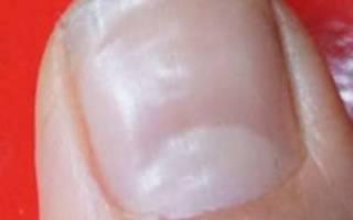 Волны на ногтях: что это значит, чего не хватает и почему стали появляться на больших и иных пальцах рук правой и левой, а также механические причины и лечение