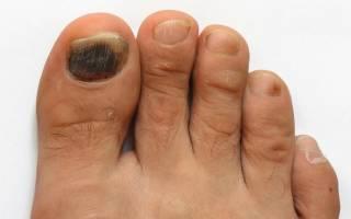 Почему почернел ноготь на пальце ноги: причины потемнения и лечение заболеваний — idealnyi-manikur.ru