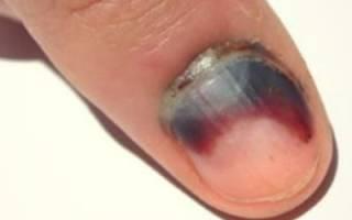 Синеют ногти на руках: причины, почему появляется проблема, и может ли быть от того, что прищемили, например, большой палец, дверью машины, или от удара, что делать?