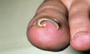 Почему закручиваются ногти в трубочку на руках и на ногах: гель-лак и иные причины скручивающихся внутрь пластин, и что делать, если они сворачиваются по бокам?