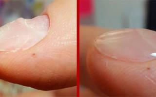 Как выравнивать ногтевую пластину базой, биогелем, гелем Kodi, Блюскай, Окси, самой себе на ногах, руках. Видео