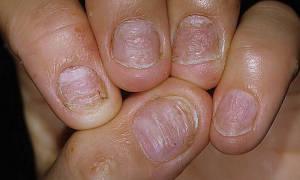 Псориаз ногтей: лечение в домашних условиях, фото болезни