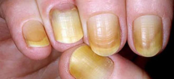 Желтые ногти на руках: причины, лечение