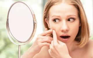 Способы лечения белых угрей под кожей на лице в домашних условиях – Мода, стиль, макияж, маникюр, уход за телом и лицом, косметика