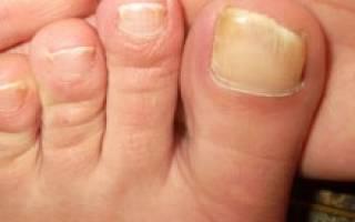 Как размягчить ногти на ногах для стрижки: чем быстро обработать большой палец у пожилых и нет, и крема, мази, иные средства для жестких, твердых пластин, при грибке