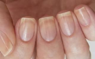 Деформация ногтей на руках: причины у взрослых, в том числе у женщин, и у детей, и почему появляются дефекты на большом и остальных пальцах, что это значит?