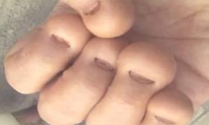 Что будет если грызть ногти, фото, видео — чем опасно?