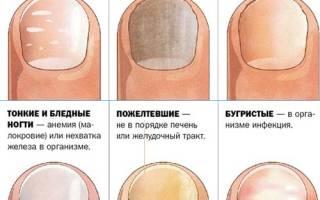 Как укрепить ногти в домашних условиях: чем можно быстро привести их в нормальное состояние, и простые рецепты народных средств, укрепление йодом и не только