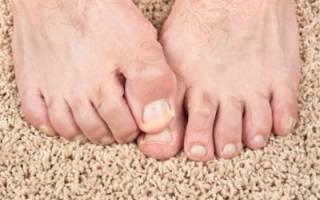 Почему ногти на ногах желтые — причины и лечение