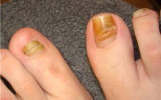 Болит ноготь на ноге на большом пальце или других: причины и почему при нажатии там, где ногтевая пластина, или постоянно, отчего посинел, почернел, что делать?