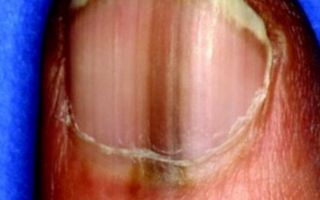 Темное пятно под ногтем: что это такое, что означает, почему появилось на большом или других пальцах рук или ног, а также способы лечения, меры профилактики